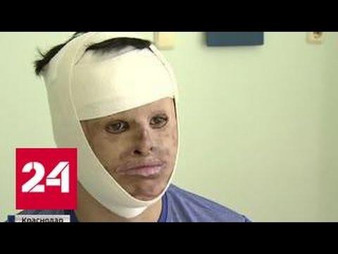 Новая жизнь в подарок: краснодарские хирурги вернули лицо пациенту