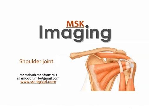 Imaging of the Shoulder joint ( part I ) -DRE 7 - Dr Mamdouh Mahfouz