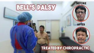 Bell Palsy patient helped!
