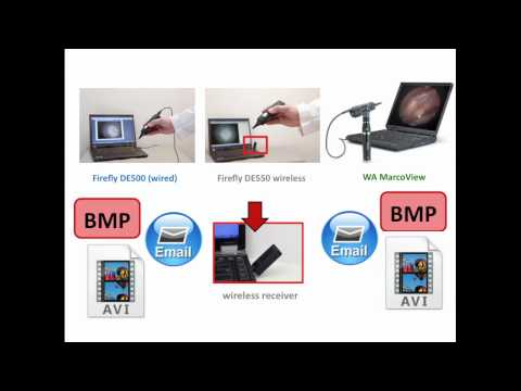 Video Otoscope Comparison