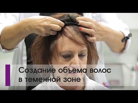 Создание объема волос в теменной зоне при очень редких своих волосах.