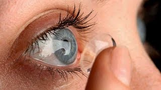 Doctors Remove 27 Contact Lenses Lodged In Woman's Eye