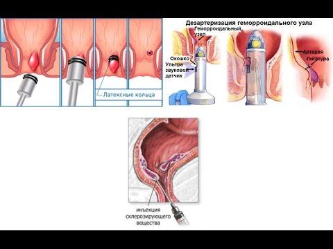 Геморрой, симптомы и лечение геморроя