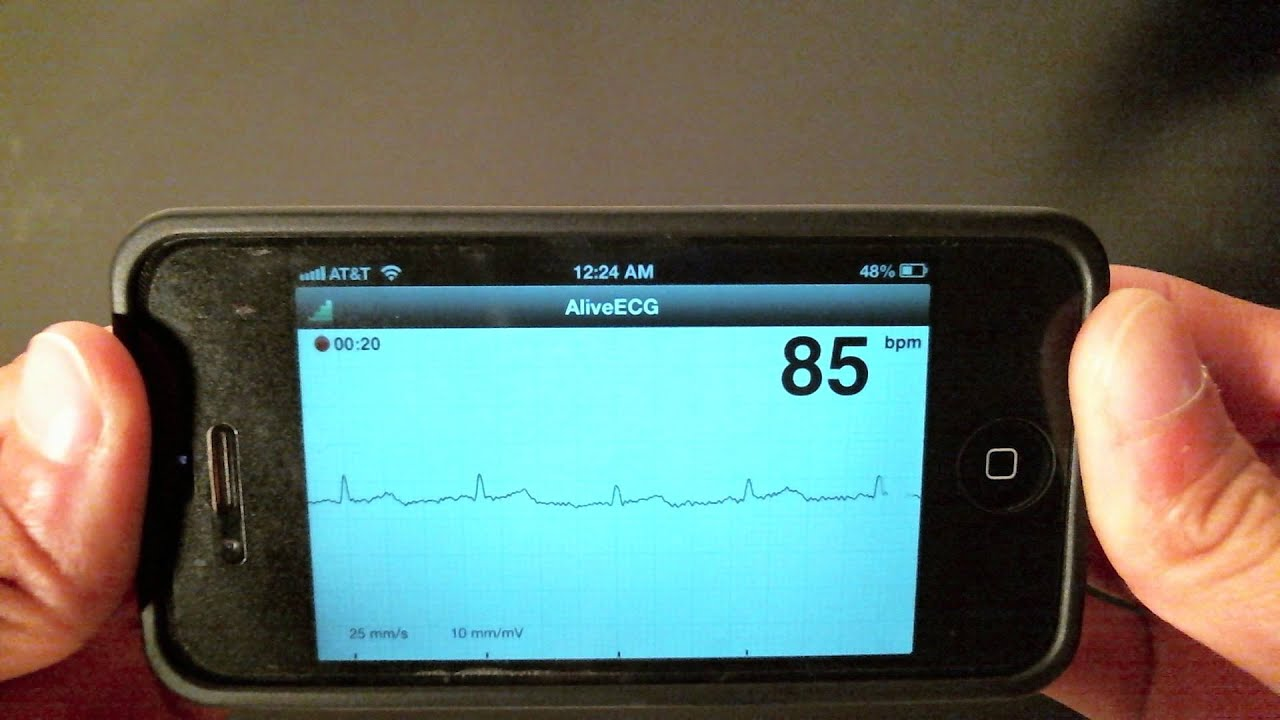 Physician review of the iPhone AliveCor ECG heart monitor