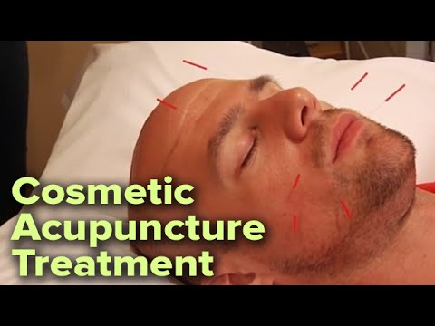 Relaxing Cosmetic Facial Acupuncture Treatment | Enhances Skin Tone and Reduces Wrinkles