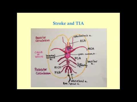 Stroke and TIA - CRASH! Medical Review Series