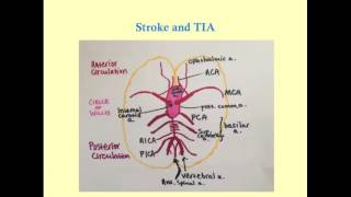 Video Stroke and TIA - CRASH! Medical Review Series download MP3, 3GP, MP4, WEBM, AVI, FLV Agustus 2017