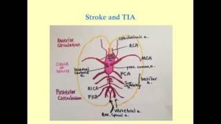 Video Stroke and TIA - CRASH! Medical Review Series download MP3, 3GP, MP4, WEBM, AVI, FLV November 2017