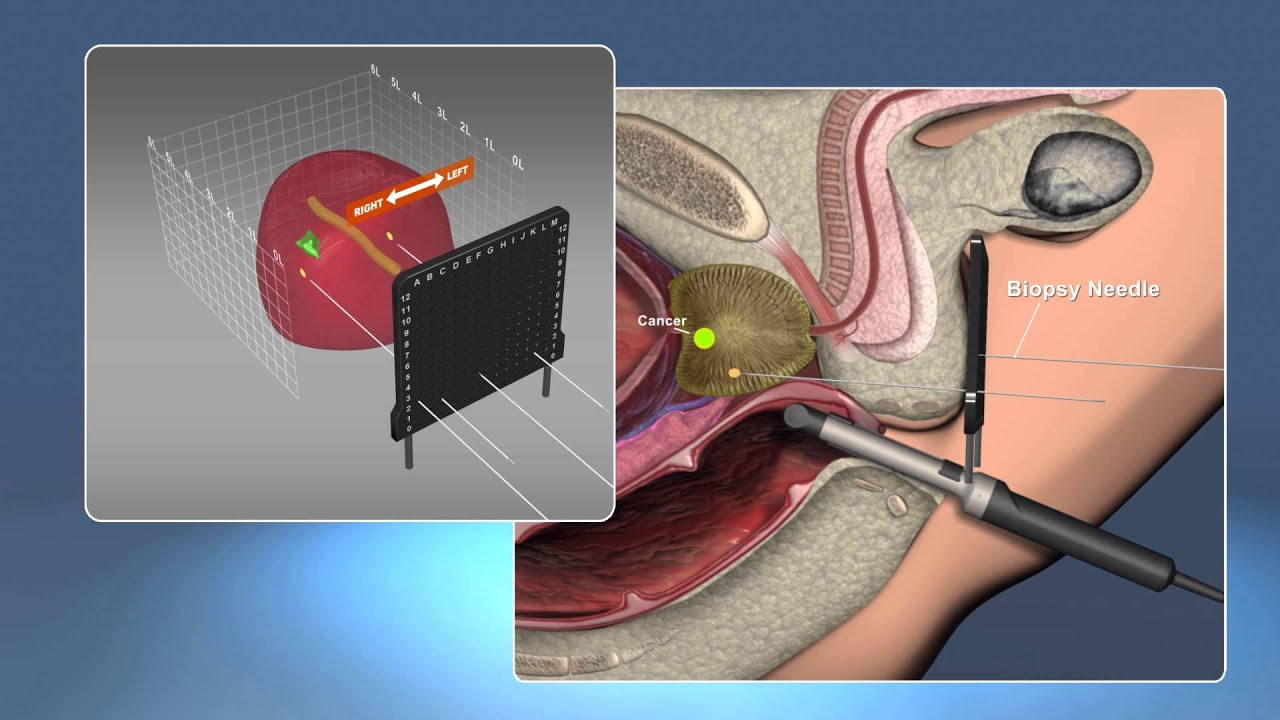 3D Staging Biopsy: The ONLY way to Accurately Detect and Locate Cancer in the Prostate