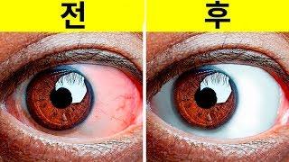눈의 피로를 덜어주는 10+ 가지 쉬운 운동