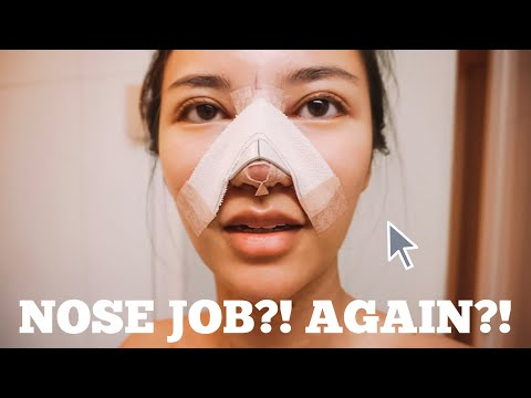 I GOT A NOSE JOB! Rhinoplasty (part 1)