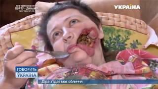Дыра съедает мое лицо (полный выпуск) | Говорить Україна
