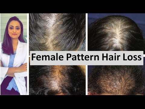 Hair Loss In Women | Female Pattern Hair Loss | Causes & Treatment | Dermatologist