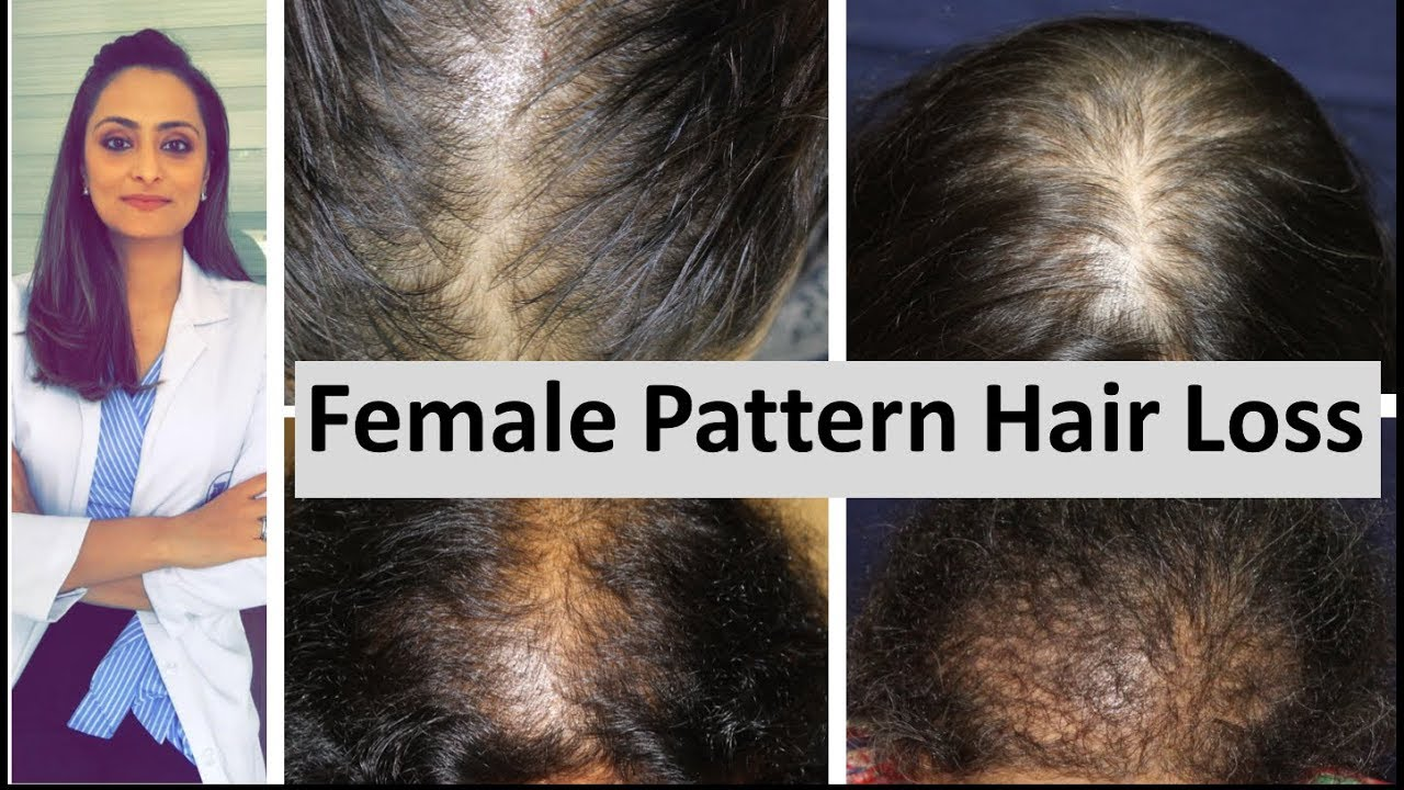 Hair Loss In Women Female Pattern Hair Loss Causes Treatment Dermatologist Youtube
