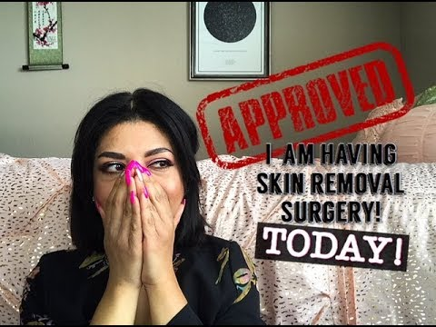 Getting Skin Removal Surgery, Today!