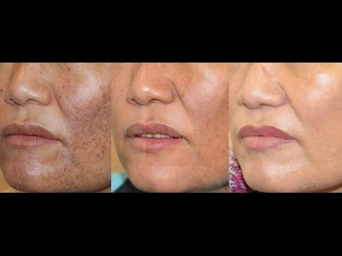 Como Acabar Com Manchas No Rosto E Melasma Mascara Caseira De Arroz