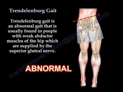 Video - Abnormal Gait Exam Myopathic Gait Demonstration ...