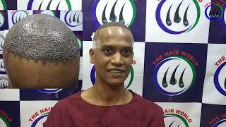 Download lagu Hair Transplant full Video    Best Hair Transplant Clinic India    Painless Hair Transplant