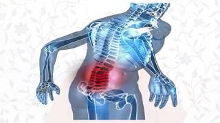 El nervio presionando ciático tumor