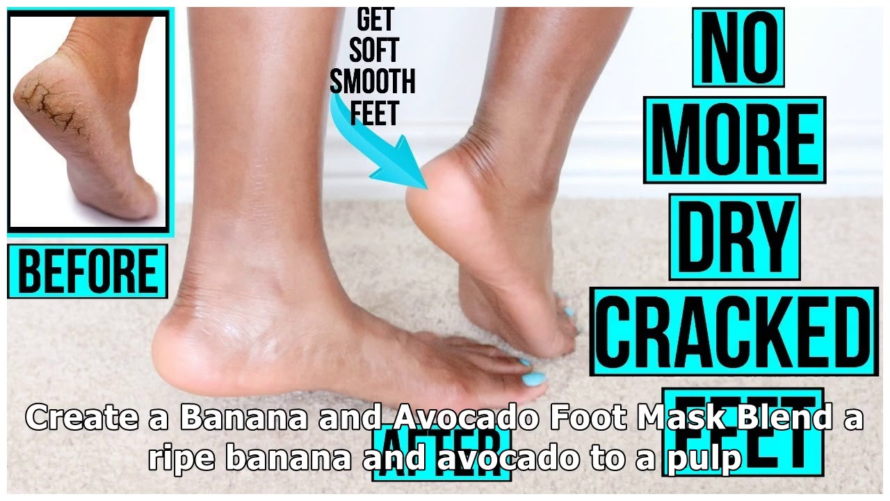 How to Get Rid of Dry Skin on Feet Naturally