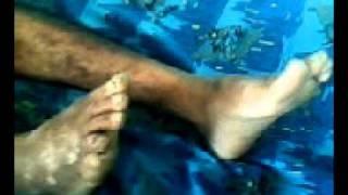 teko de moron ,hospitalizado 5-10.2011