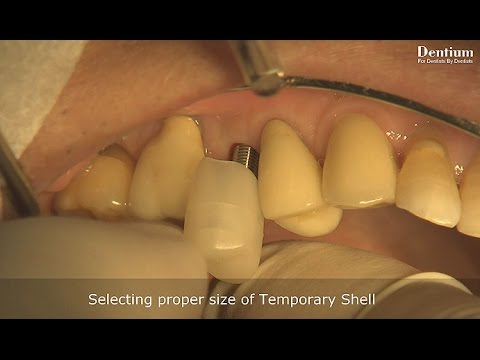 Instruction of Dentium Temporary Shell application