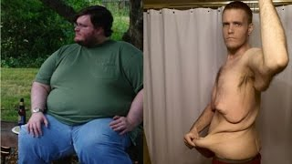 Man Bravely Shows Excess Skin after Naturally Losing 400 Pounds