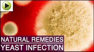 Yeast Infection - Natural Ayurvedic Home Remedies