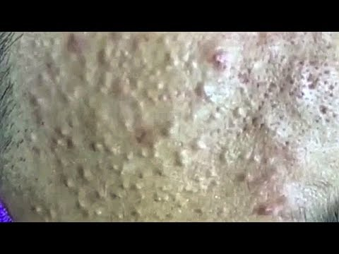 Satisfying Video Face Skin Care Beauty and Relaxing Sleep Music (Part 39)