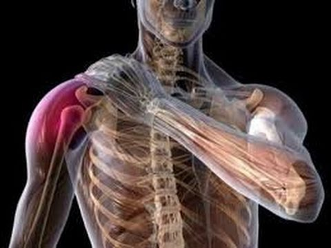 an effective self treatment for shoulder (tendonitis, bursitis, Human Body
