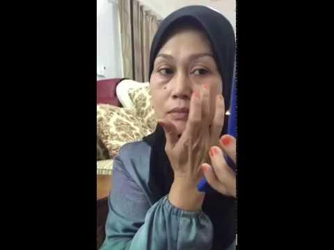 Testimoni Alrazi botox cream