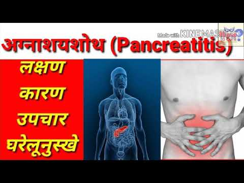 Pancreatitis | अग्नाशयशोथ | Pancreas Swelling | Treatment | Upchar |  Ilaj | उपाय | Hindi | causes