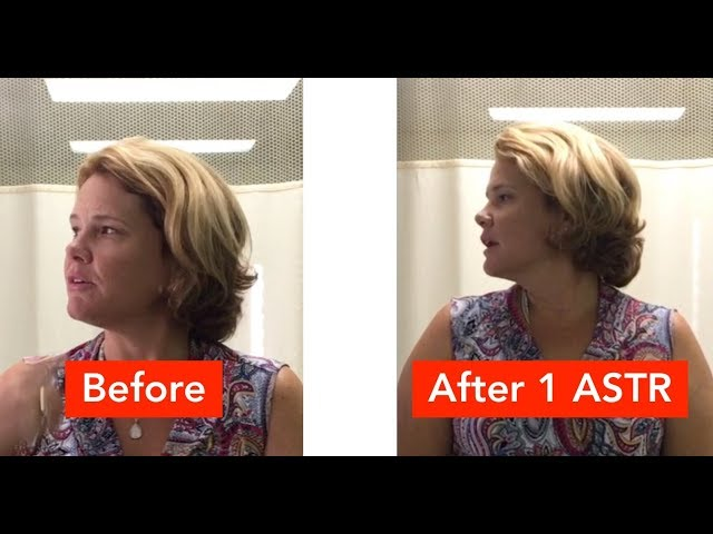 Chronic Neck & Face Pain Was Relieved in Minutes (REAL RESULTS!!!)