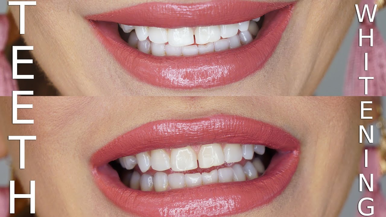 DIY Teeth Whitening Using Charcoal