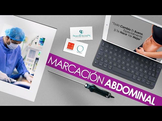 Casos   Definición Abdominal en Mujeres  Bogotá Colombia o  Vídeos de Marcación abdominal Femenina.