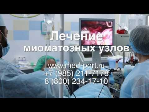 Удаление миоматозных узлов. Эмболизация маточных артерий