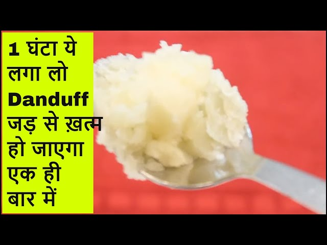 डैंड्रफ रूसी एक बार में ख़त्म Dandruff hatane ka tarika, How to remove dandruff from hair at home ,