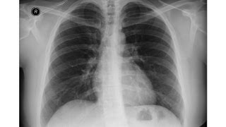 Chest x-ray -Right lower lobe collapse