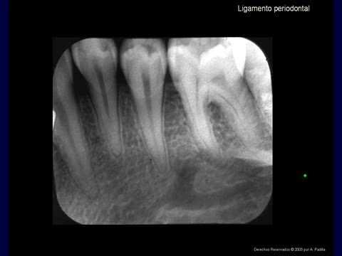 Espacio del ligamento periodontal. Periodontal ligament space