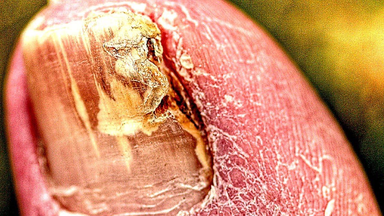 Картинки гриба болезнь
