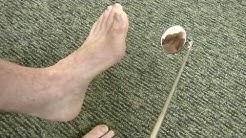 hqdefault - Diabetic Foot Center India