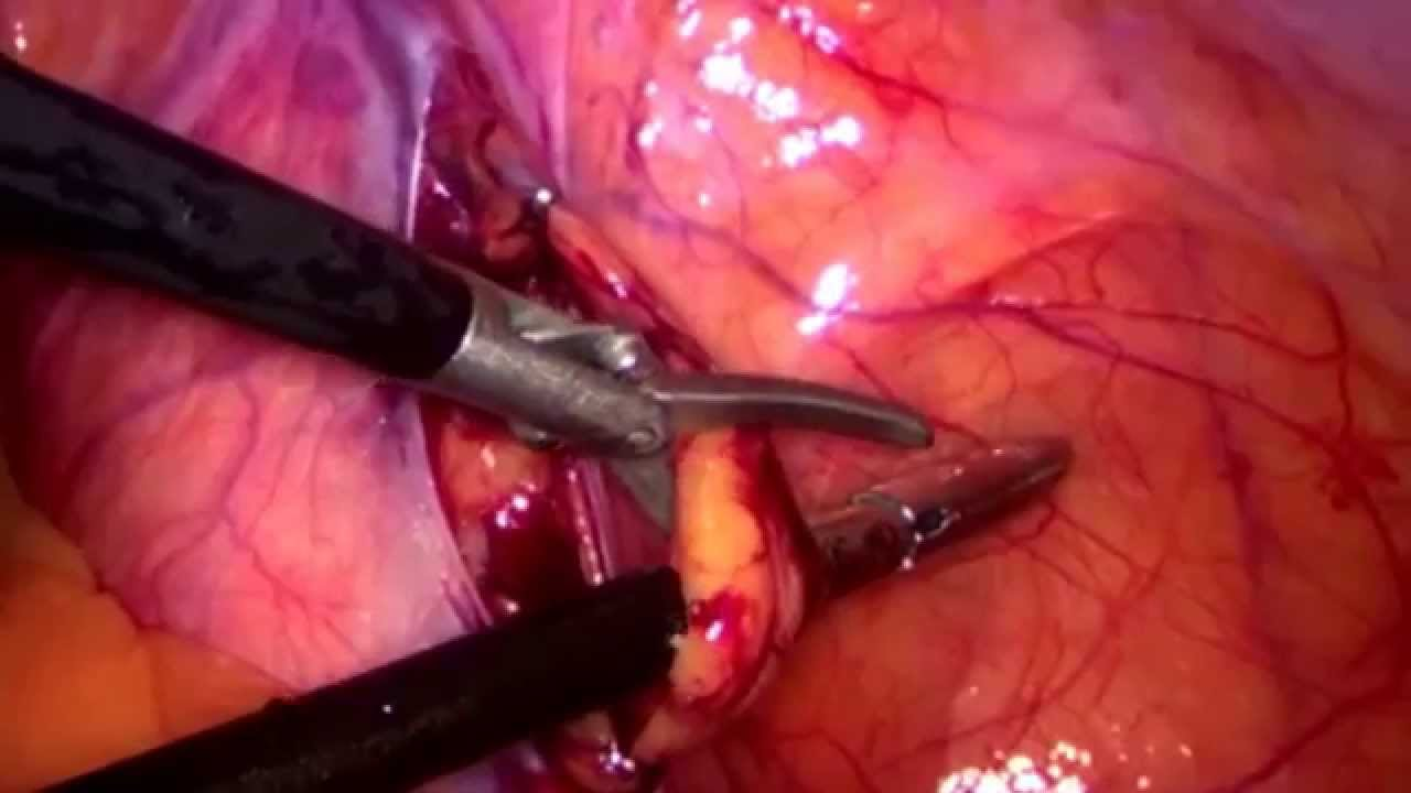 Laparoscopic Bilateral Varicocelectomy - YouTube
