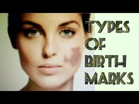 Types of Birthmarks II What are Birthmarks ?