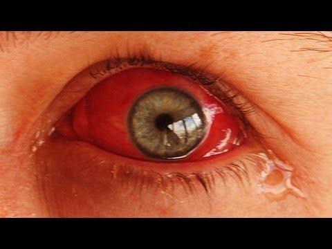 MUITO CUIDADO AO ASSISTIR FILMES 3D - YouTube 2a37e22d81