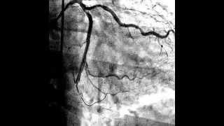 Стентирование сосудов сердца.  Плохие прогнозы