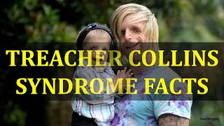 Treacher Collins Syndrome is a rare genetic condition that affects your facial features from birth. .