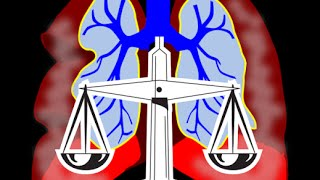 Mesothelioma law firm  phoenix