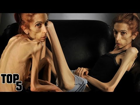 Top 5 Skinniest People In The World