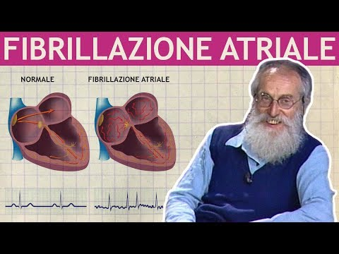 dott.-mozzi:-fibrillazione-atriale,-aritmie,-extrasistole,-tachicardie
