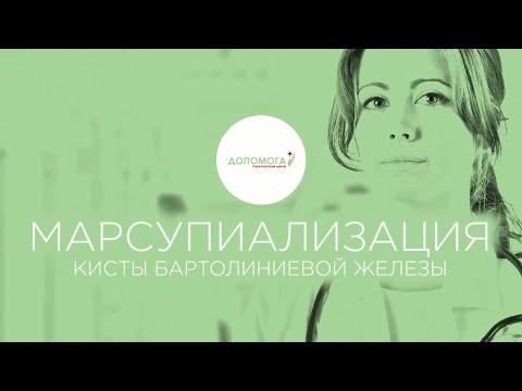 Марсупиализация, лечение (бартолинита) кисты бартолиновой железы